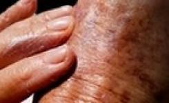 Cáncer de Piel – Prevención – Tratamientos – Medicina y Farmacia