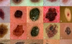 Nueva terapias para el Melanoma